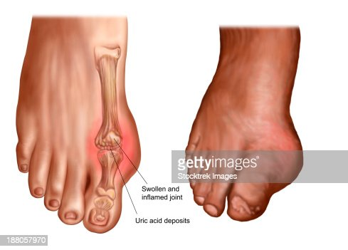 anatomy of a swollen foot stock illustration | getty images, Cephalic Vein