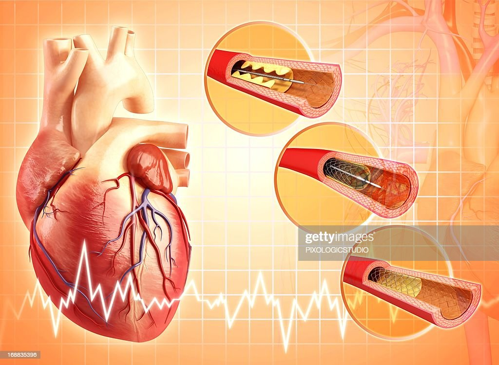 Angioplasty, artwork : Stock Illustration
