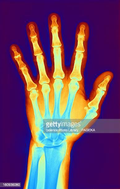 Arthritic hand, X-ray
