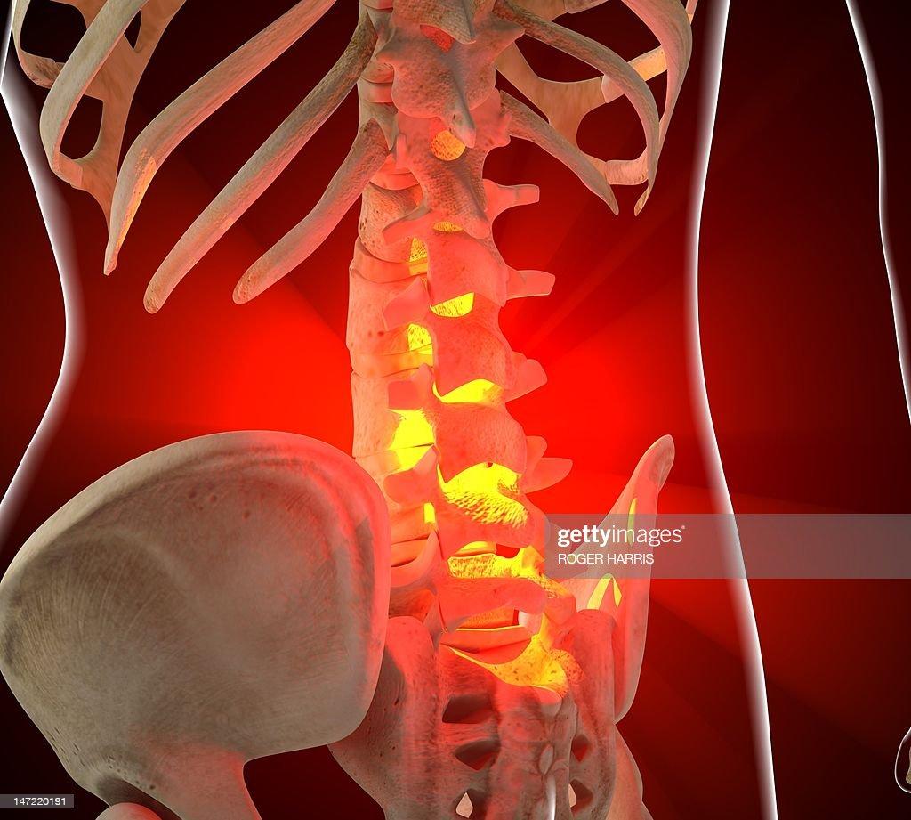 Back pain, conceptual artwork : Stock Illustration