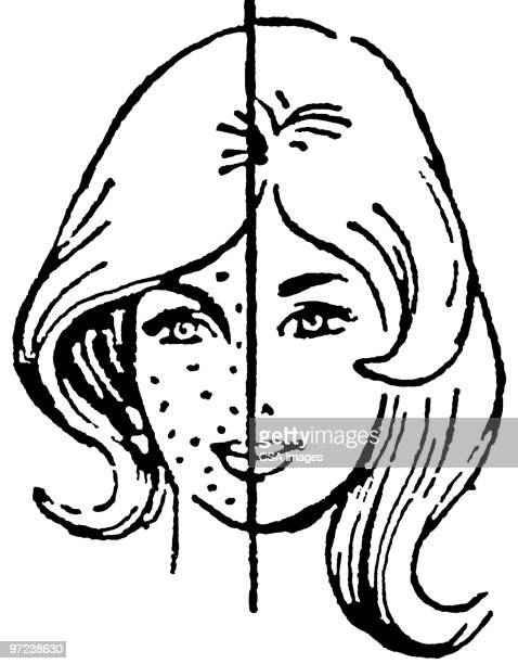 pimple stock illustrations and cartoons