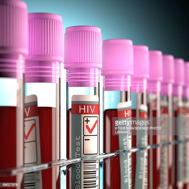 Blood samples for HIV tests, illustration