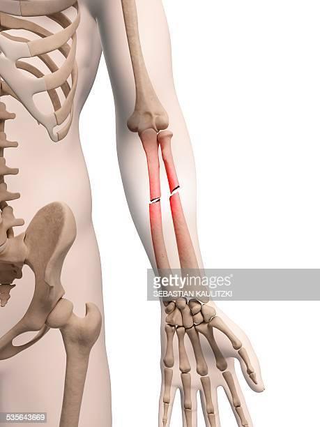 Broken arm bones, illustration