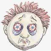 Cartoon of man with messy hair, bags below bloodshot eyes, and stubble on face and chin