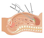 Cross section biomedical illustration of endoscope and tubes inserted in abdomen of adult female during Laparoscopic Surgery