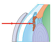 Cross section biomedical illustration of laser iridotomy where laser beam is focused on iris through thick contact lens to cut hole in iris