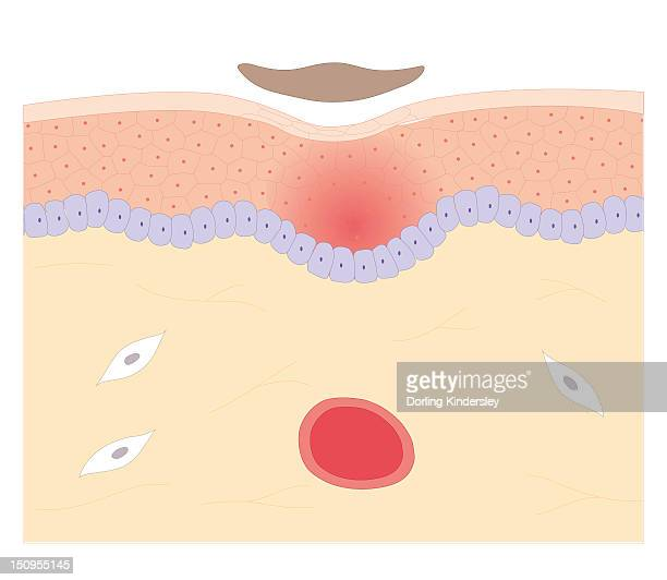 Cross section biomedical illustration of skin repair with fibrous plug hardening to become scab which falls off when new skin growth is complete