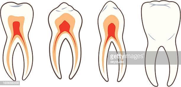 Dental-Teeth