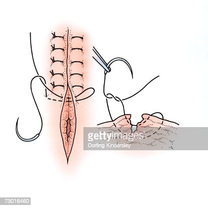 diagram showing surgical repair of a torn vagina stock, Skeleton
