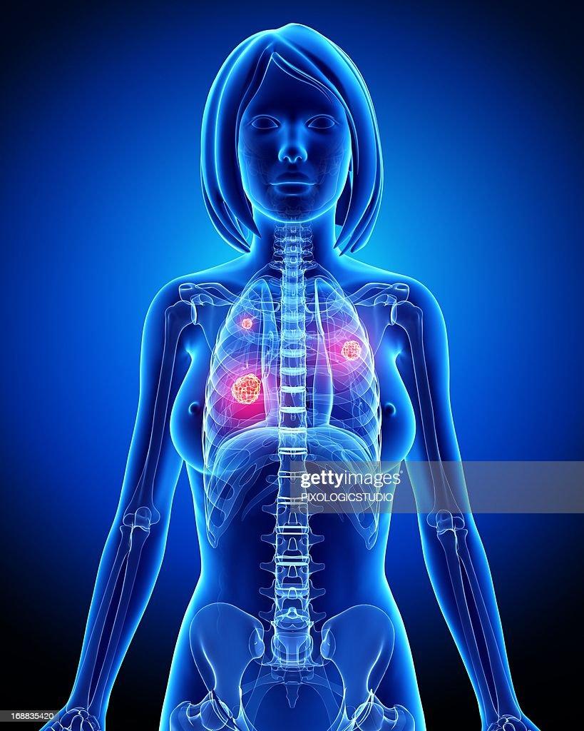Female lung cancer, artwork : Stock Illustration