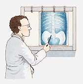 Illustration of doctor pointing at x-ray of pelvis and spine