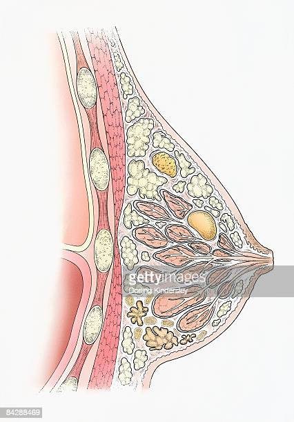 Fibroid adenoma in the breast