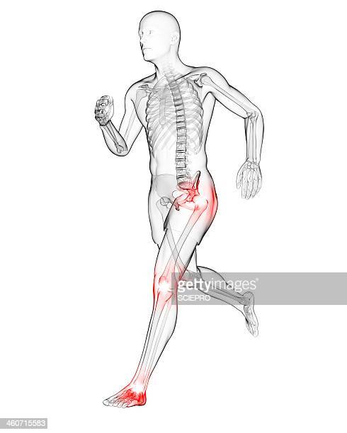 inflammation stock illustrations and cartoons