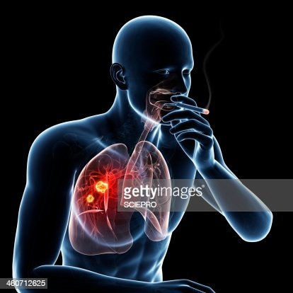 smoking and lung cancer pdf