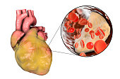 Obese heart and closeup view of coronary artery with cholesterol plaque, 3D illustration. Conceptual image for cardiovascular diseases and atherosclerosis
