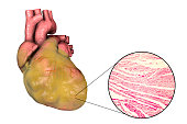 Obese heart with left ventricular hypertrophy, 3D illustration and micrograph