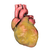 Obese heart isolated on white background, 3D illustration