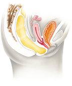A postmenopausal human female pelvis, cutaway cross section. Shown are the rectum, cervix, spine, fallopian tubes, uterus, bladder, pubic bone, urethra, and vagina.