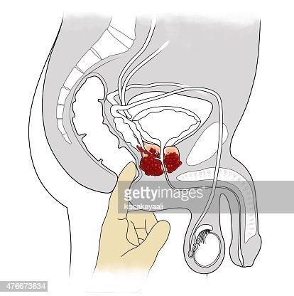 Erectie na prostaatoperatie