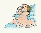A sleep apnea patient with mask on
