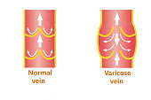 The abstract varicose veins and normal veins