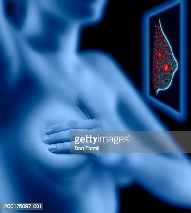 Woman examining her breast, simulated breast scan (Digital Composite) : Stock Illustration