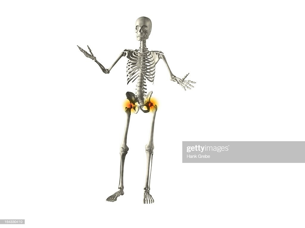 xray view of a human skeleton with hip joint inflammation stock, Skeleton