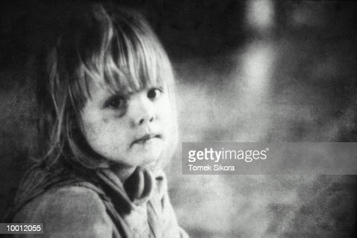 YOUNG GIRL WITH BRUISED EYE IN BLACK AND WHITE : Foto de stock