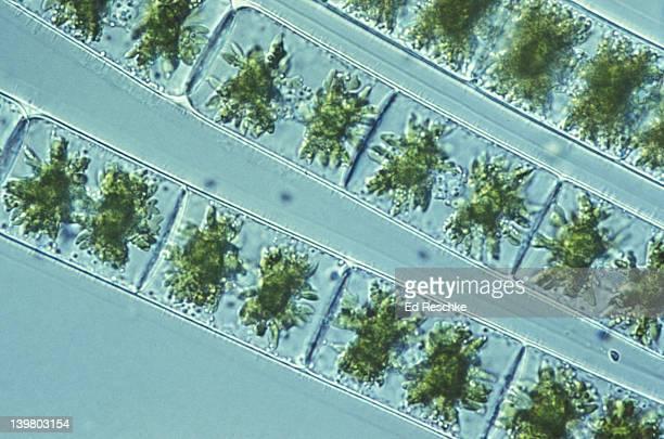 SPIROGYRA: GREEN ALGAE, SPIRAL CHLOROPLAST,  NUCLEUS, CELL WALL LIVING   (100X)