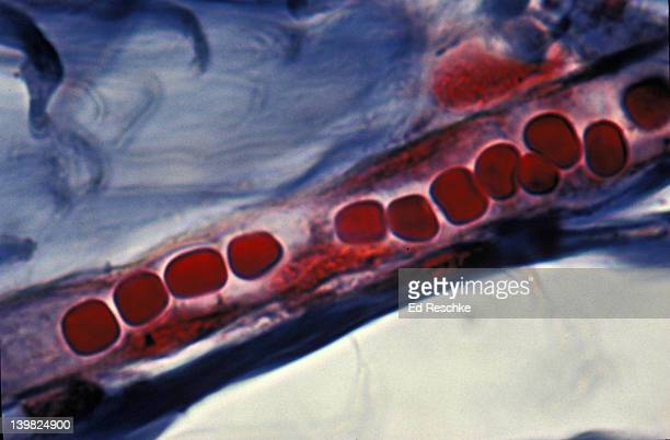 CAPILLARY AND RED BLOOD CELLS (IN SINGLE FILE) SCALP (HUMAN) 500X H