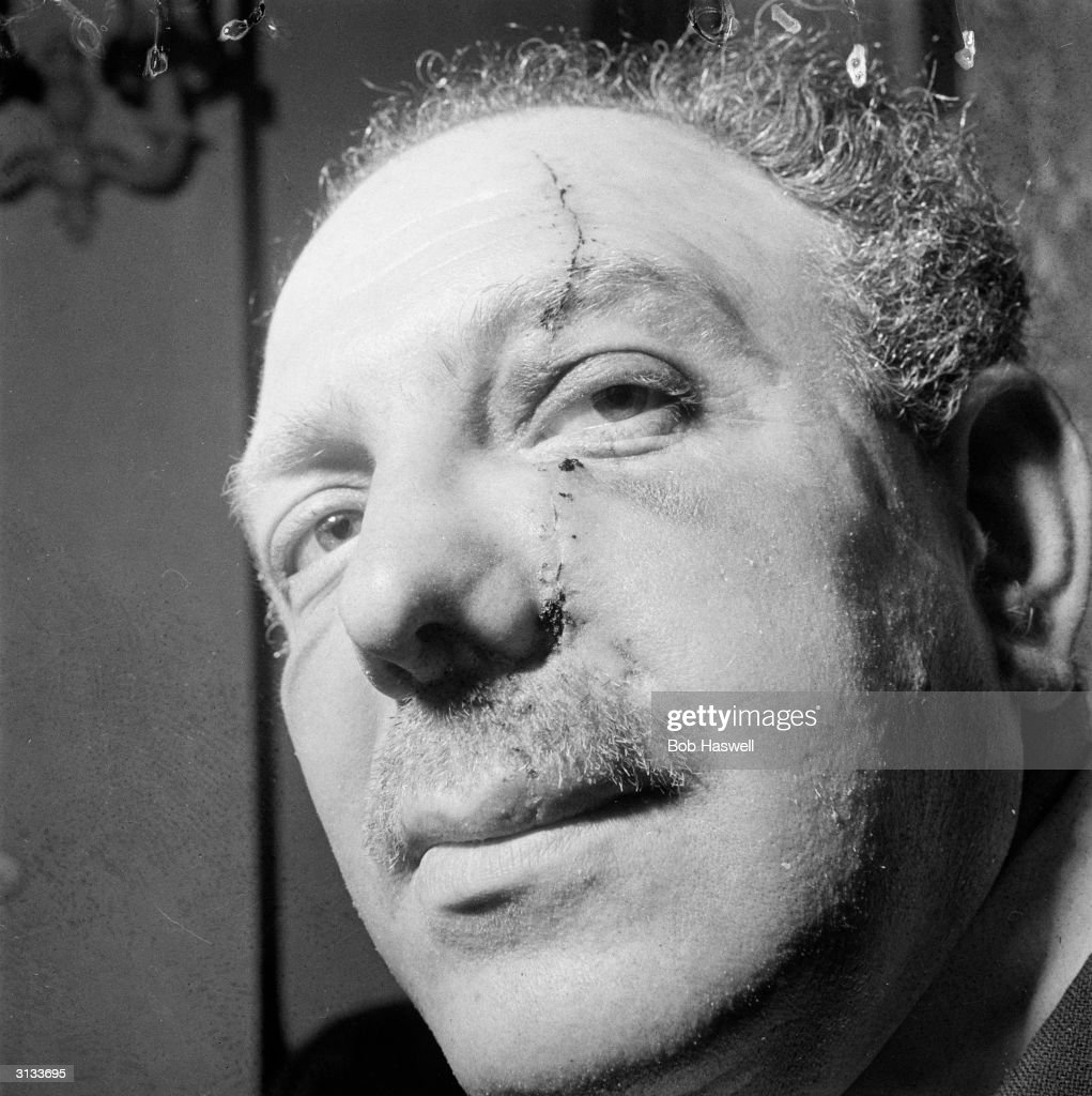 Self-styled 'King of Soho', Jack 'Spot' Comer showing the scar on his face left after he was ambushed outside his flat in Bayswater, West London, by Frankie Fraser and Alf Warren. The incident, the second in which his face was slashed, prompted Comer to retire from organised crime and he went into the furniture business shortly afterwards.