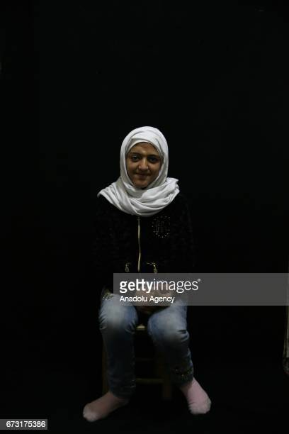 13yearold wounded Syrian war victim Ayse Mohammed who fled from her house due to ongoing civil war is seen in Gaziantep Turkey on April 12 2017 Ayse...