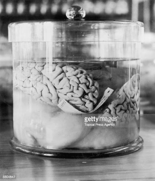 The pickled brain of a burglar by the name of Dunlap