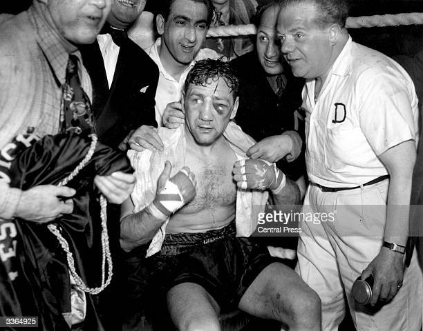 American heavyweight boxer Gus Lesnevich nurses a black eye after winning the championship fight against Freddie Mills in Harringay London