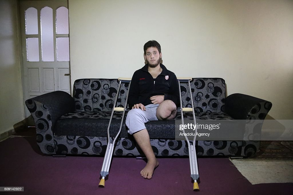19-years-old Syrian refugee Odey Osman (C) fled from Syria due to ongoing civil-war, poses at a house in Turkey's Syrian border city Hatay's Reyhanli District on February 08, 2016. Hassan had lost his left leg due to Assad Regime's attack. Turkey spent US$ 8 Billion and hosts approximately 2 million refugees.