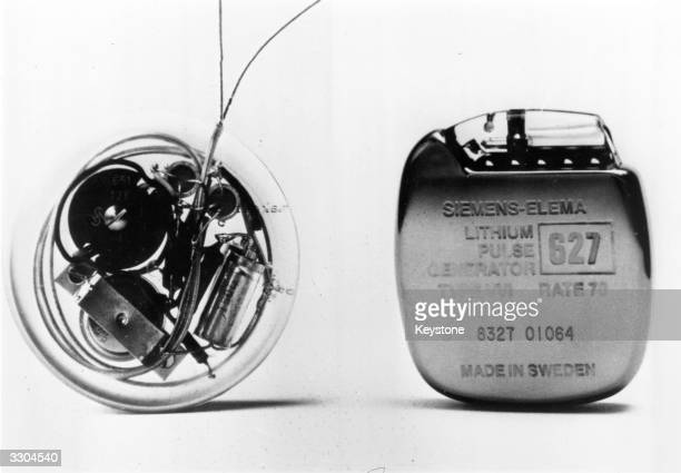 On the left is the first successful 1958 heart pacemaker and on the right its 1978 model equivalent made by SiemensElema of Sweden