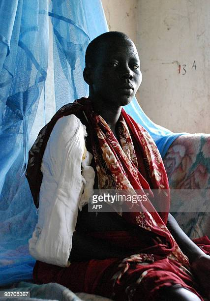 A 20year old southern Sudanese woman recovers at Akobo's hospital from a gunshot wound to her arm and a spear thrust in her back in Sudan�s Jonglei...