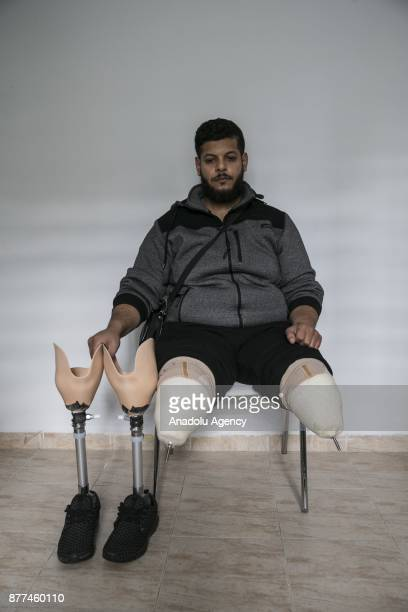 24yearold Syrian refugee Muslim Muslim fled from Syria's Aleppo due to ongoing civilwar poses at a medical center after he got his prothesis legs in...