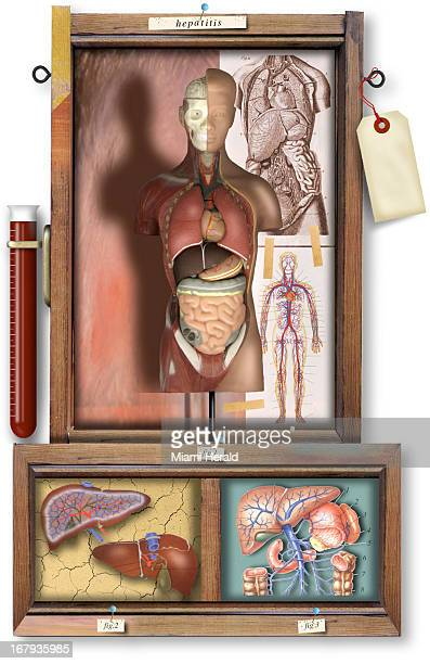 30p x 47p Philip Brooker color illustration of various human anatomy images including a human torso cutaway and a closeup of the liver with a label...