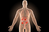 3d human body crohn's infection sites colon with clipping path.