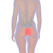 3d illustration showing a female body with haemorrhoids