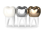 3d render of teeth with gold, amalgam and composite dental crown over white background