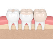 3d render of teeth with inlay, onlay and crown filling in gums