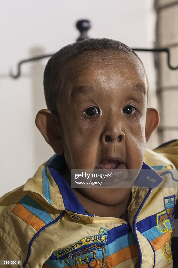progeria essays Progeria is a rare, fatal, sporadic, autosomal dominant syndrome that involves premature ripening, by and large taking to decease at about 13 old ages of age due to.