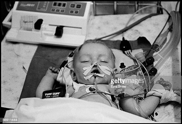 5monthold Vova Aksenov from the city of Minsk is connected to life support at the intensive car unit of the Childrens regional hospital on August 17...