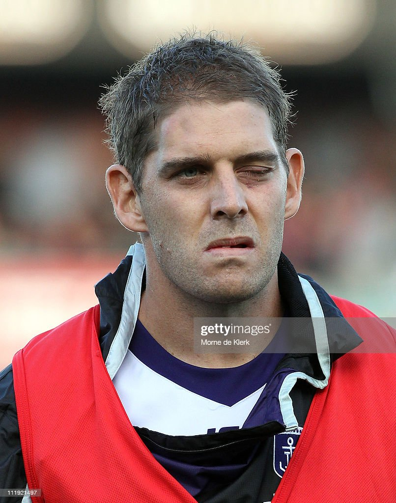 <a gi-track='captionPersonalityLinkClicked' href=/galleries/search?phrase=Aaron+Sandilands&family=editorial&specificpeople=171132 ng-click='$event.stopPropagation()'>Aaron Sandilands</a> of the Dockers with a swollen left eye after getting injured during the round three AFL match between the Adelaide Crows and the Fremantle Dockers at AAMI Stadium on April 9, 2011 in Adelaide, Australia.