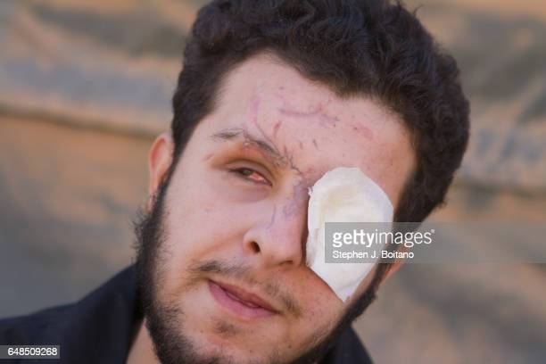 Abdel Ghafour Homsy a former Free Syrian Army fighter from Homs sits in the Moroccan Medical and Surgical Field Hospital at the Zaatari Refugee Camp...