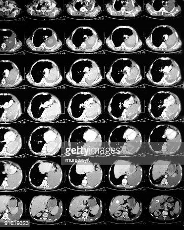 abdomen tomography
