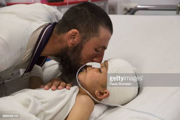 Abdul Kabir kisses his son Noor Ahmad who is unconscious with a severe brain injury from an improvised explosive device from MazarESharif Kabul on...