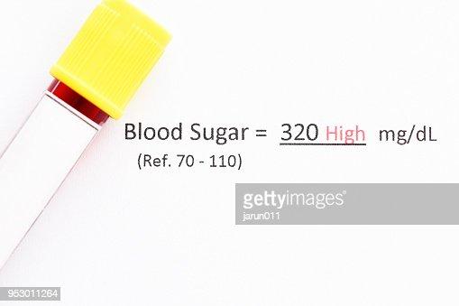 血液サンプルの異常な高レベル血糖テスト結果 : ストックフォト